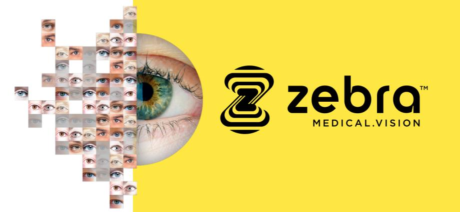 TELUS Ventures invests in Zebra Medical Vision